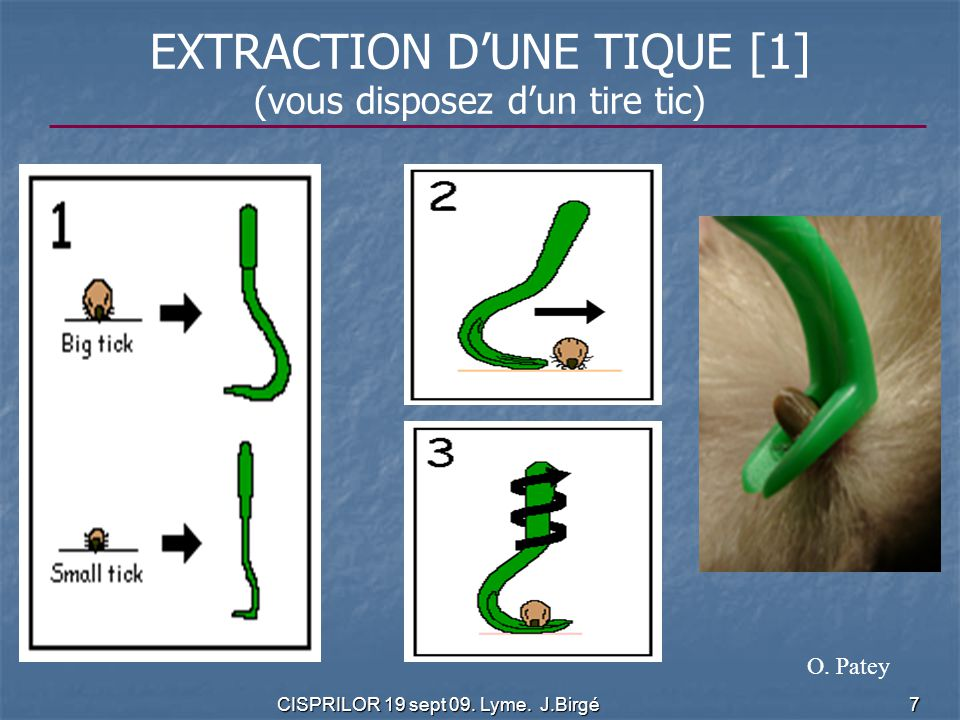 EXTRACTION D'UNE TIQUE [1]